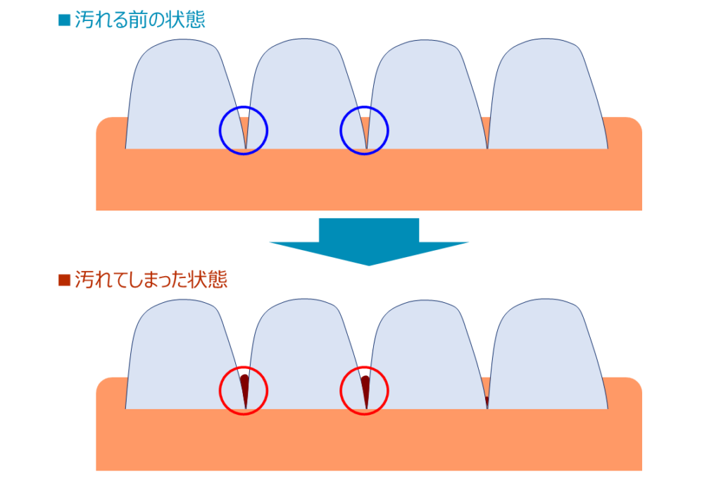 Teeth001